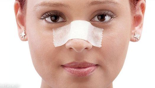 تورم طولانی بعد از جراحی بینی